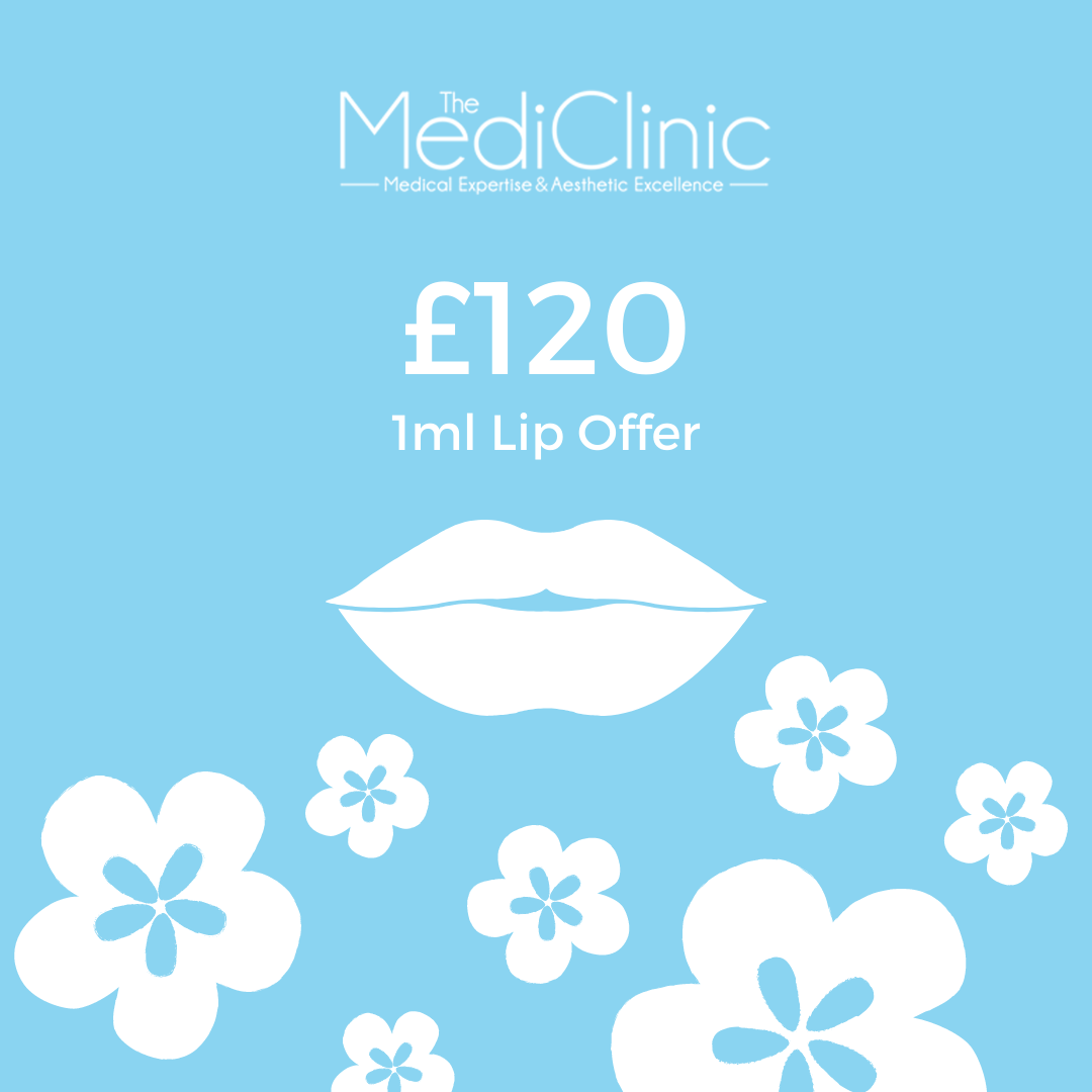 Spring lip filler offer