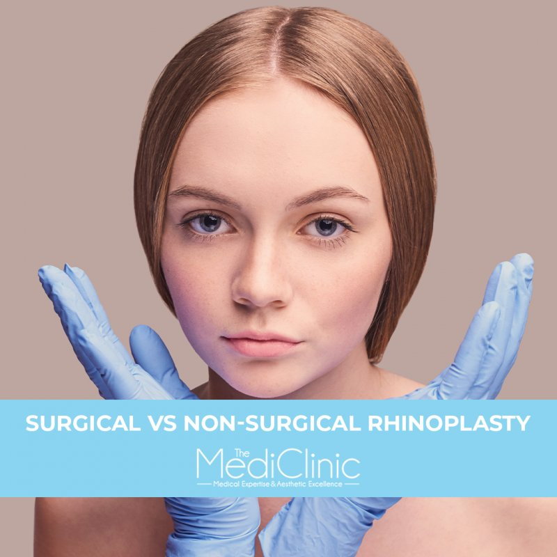 SURGICAL VS NON-SURGICAL RHINOPLASTY